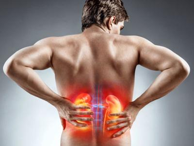 Piedras en el riñón